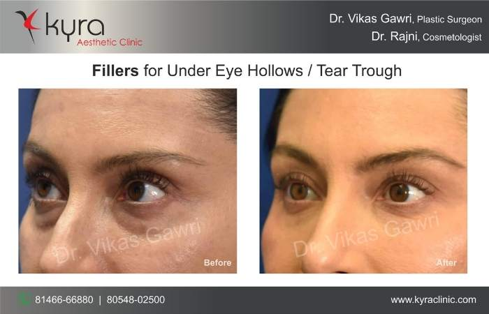 under eye fillers kyra clinic