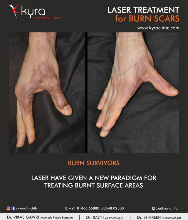 laser burn scar hands