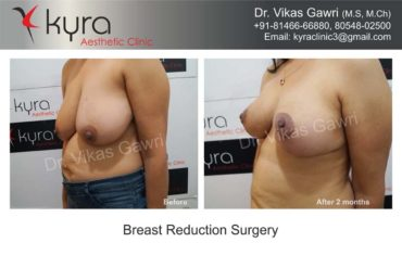 breast-implants-in-punjab01