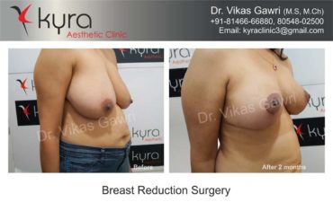 breast-implants-in-punjab02