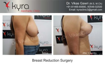 breast-implants-in-punjab03