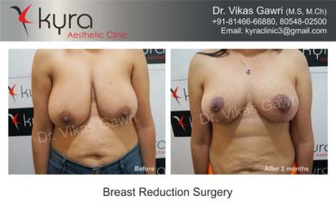 breast-implants-in-punjab04