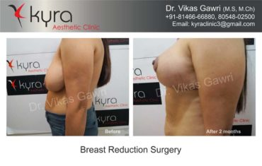 breast-implants-in-punjab05