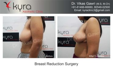 breast-implants-in-punjab19