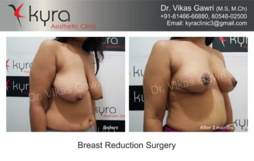 breast-implants-in-punjab20