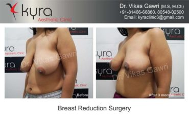 breast-implants-in-punjab22