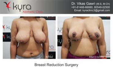 breast-implants-in-punjab23