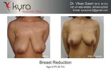 breast-reduction001