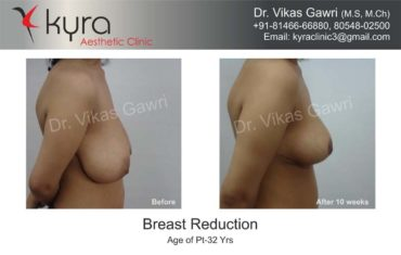 breast-reduction003