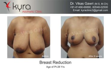 breast-reduction004