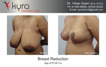 breast-reduction005