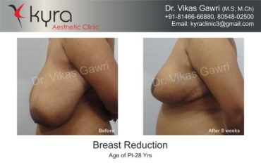 breast-reduction006