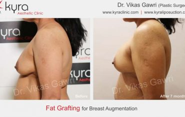 fat-transfer-breast-b2