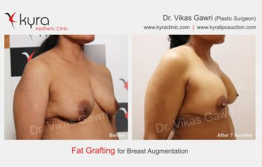 fat-transfer-breast-b3