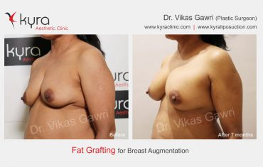 fat-transfer-breast-b4
