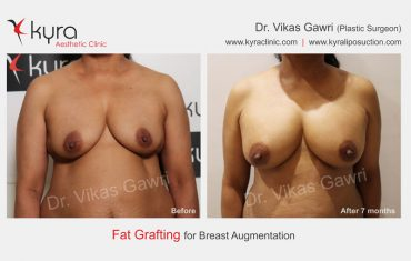 fat-transfer-breast-b5
