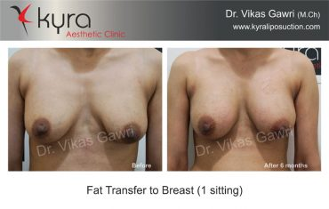 fat-transfer-breast-b6