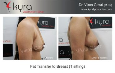 fat-transfer-breast-b7