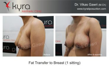 fat-transfer-breast-b8