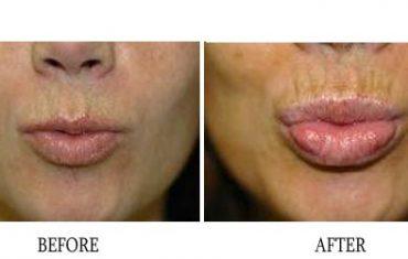 lip-enhancement-7