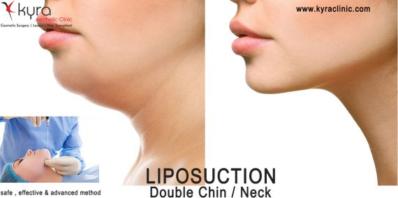liposuction-doublechin