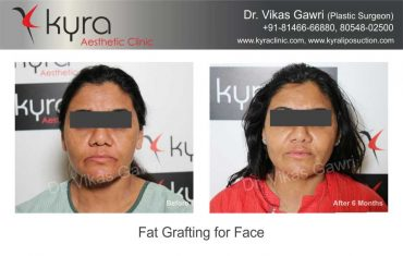 patient1-fat-grafting-small-1