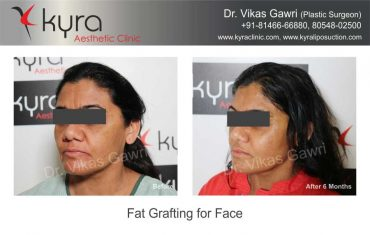 patient1-fat-grafting-small-3
