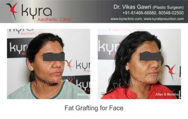 patient1-fat-grafting-small-4