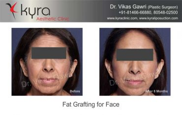 patient4-fat-grafting-small-1