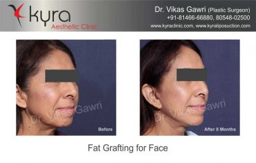 patient4-fat-grafting-small-2
