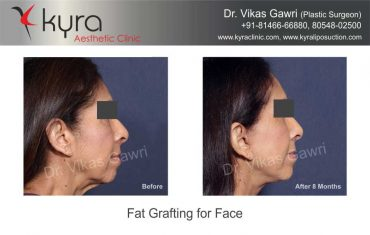 patient4-fat-grafting-small-3