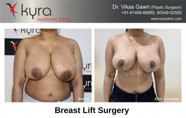breast-lift-surgery-3