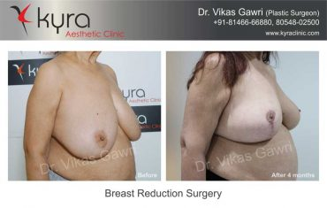 breast-reduction-surgery-mrs-brar-1