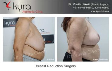 breast-reduction-surgery-mrs-brar-2