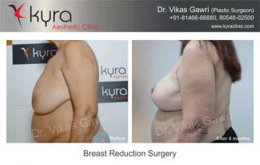 breast-reduction-surgery-mrs-brar-3