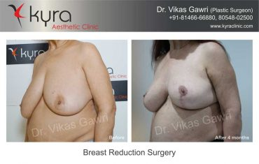 breast-reduction-surgery-mrs-brar-4