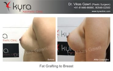 fat grafting to breast before after
