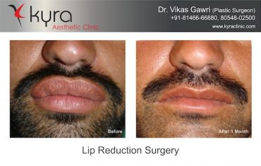 Lip reduction before after kyra clinic