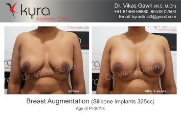 kyra clinic breast implants in punjab