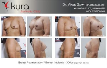 Get Perfect Breast